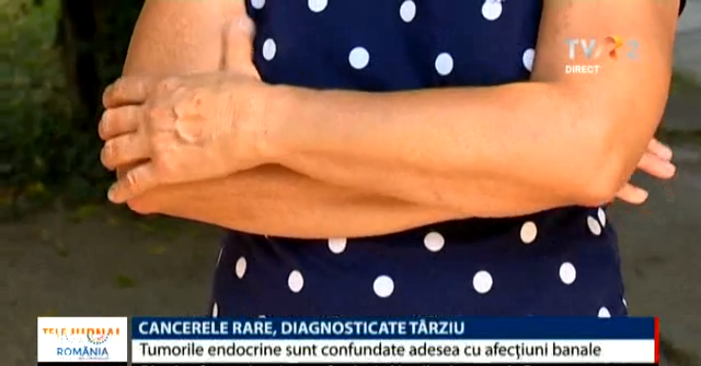 Apel al pacienţilor cu cancere rare: vor să aibă un centru unde să fie tratați și să aibă acces la teste